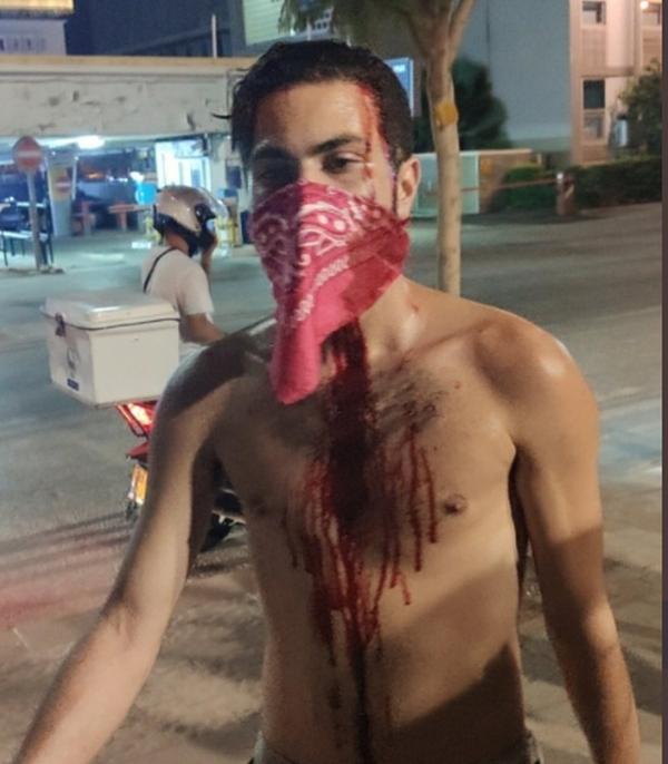 Anti-Netanyahu Protest in Tel Aviv - beaten screenshot
